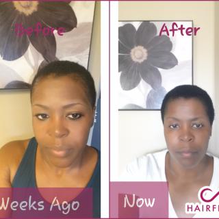 1 month 8 days on Hairfinity yah I have edges