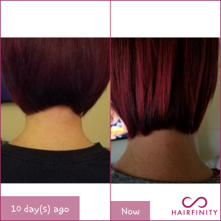I start Hairfinity in August 8, today is August 18. 10 day and I can see the difference!!!!