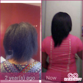 Testimonial Text before I started hairfinity and the big chop 2 years ago.