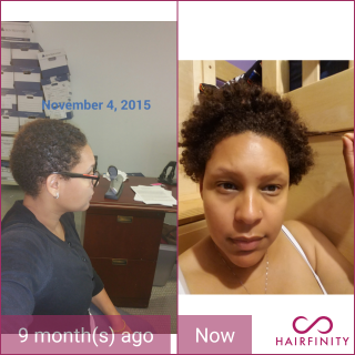 I started using Hairfinity when I decided to do the big chop. Nine months later my hair is 5 inches in length.