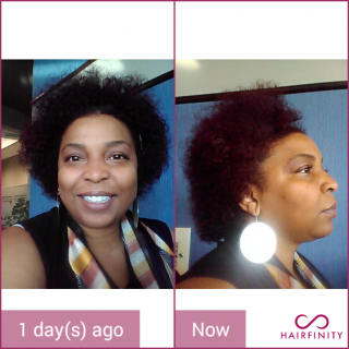Started taking hairfinity about 2 years ago.