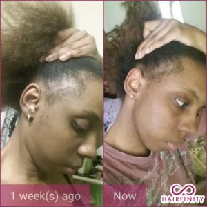 Hairfinity Infinite Edges before and after 6
